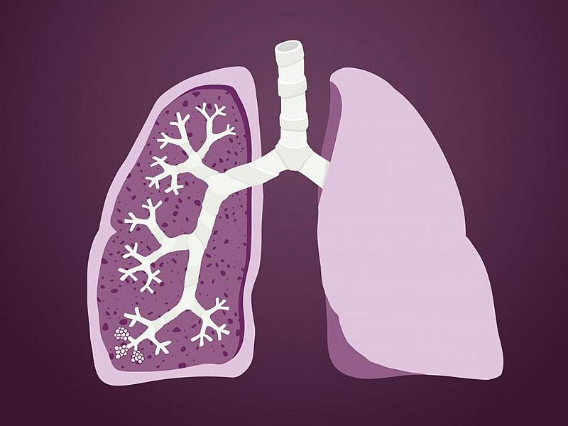 Akciğeri Temizleyen Besinler, Bitki Çayları ve Kürler