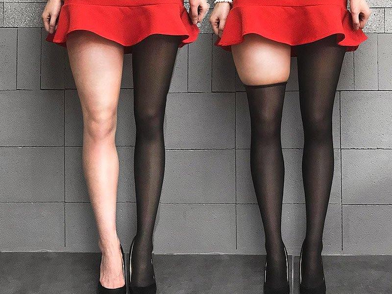 Bacak incelten çorap nedir? Ne işe yarar? Fiyatı ve kullanımı