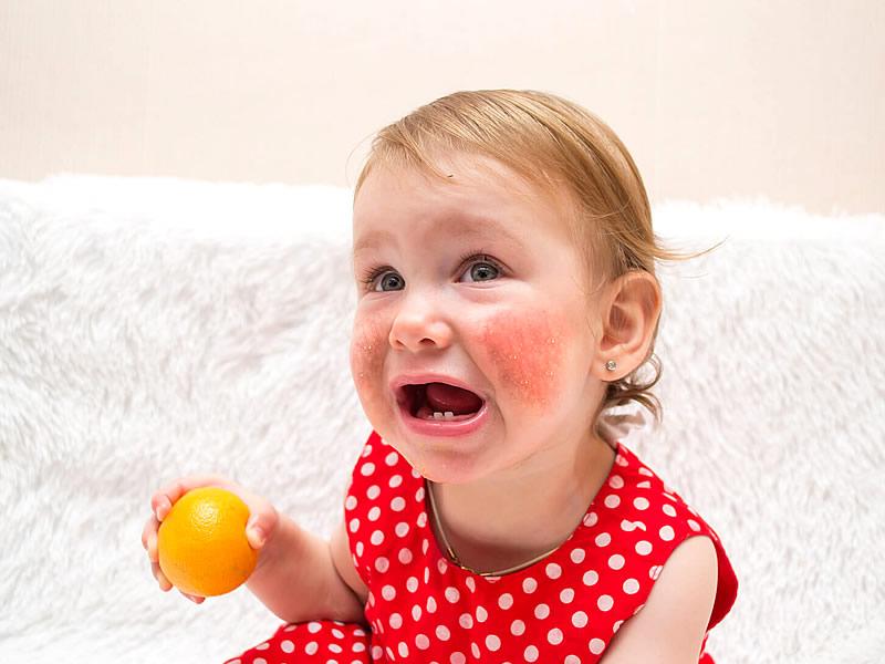 Çocuklarda Alerji Belirtileri Nelerdir? Nasıl Geçer?