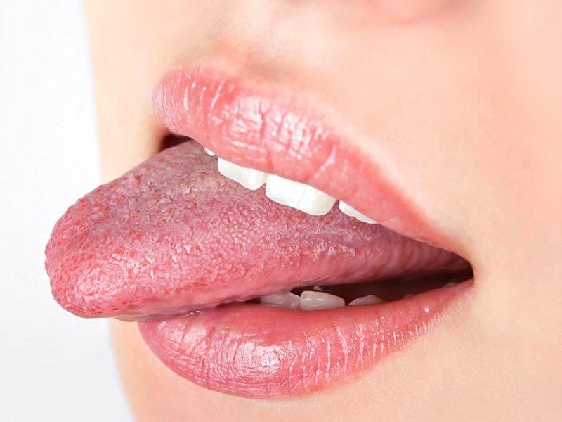 Dil kanseri nedir? Öldürür mü? Nedenleri, belirtileri ve tedavisi