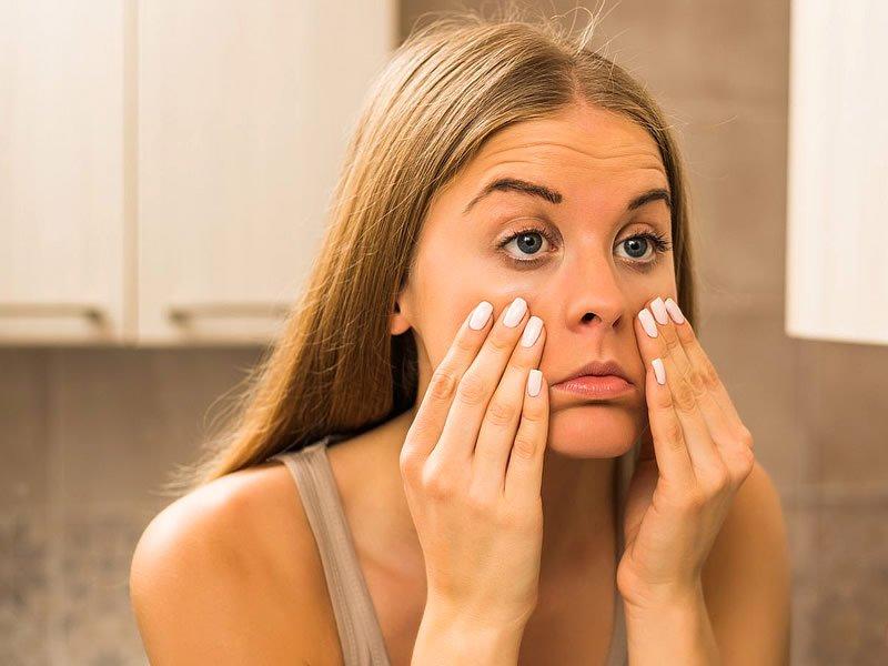 Göz çevresinde morluk neden olur? Nasıl geçer?