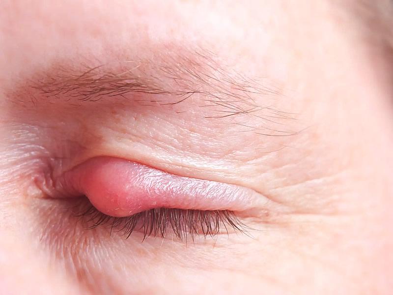 Göz Kapağında Yağ Bezesi Neden Çıkar? Nasıl Geçer?