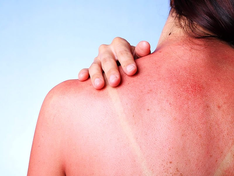 Güneş yanığına ne iyi gelir? Güneş kızarıklığı nasıl geçer?