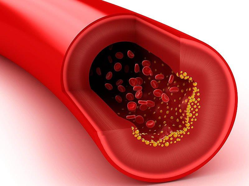 HDL kolesterol nedir? Yüksekliği ve düşüklüğü değerleri kaç olmalı? Nasıl düşürülür?