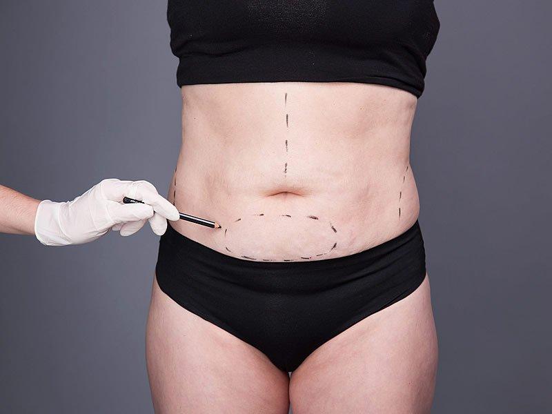 Karın germe ameliyatı öncesi ve sonrası yaşanan süreç