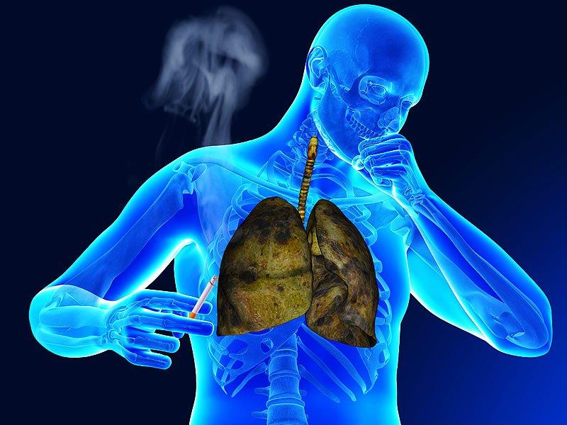 Shinz hastalığı - belirtileri ve tedavisi