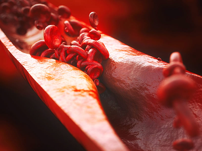 Kolesterol Düşürmek İçin Ne Yapmalıyız? Kür, Diyet ve Beslenme Tarifleri
