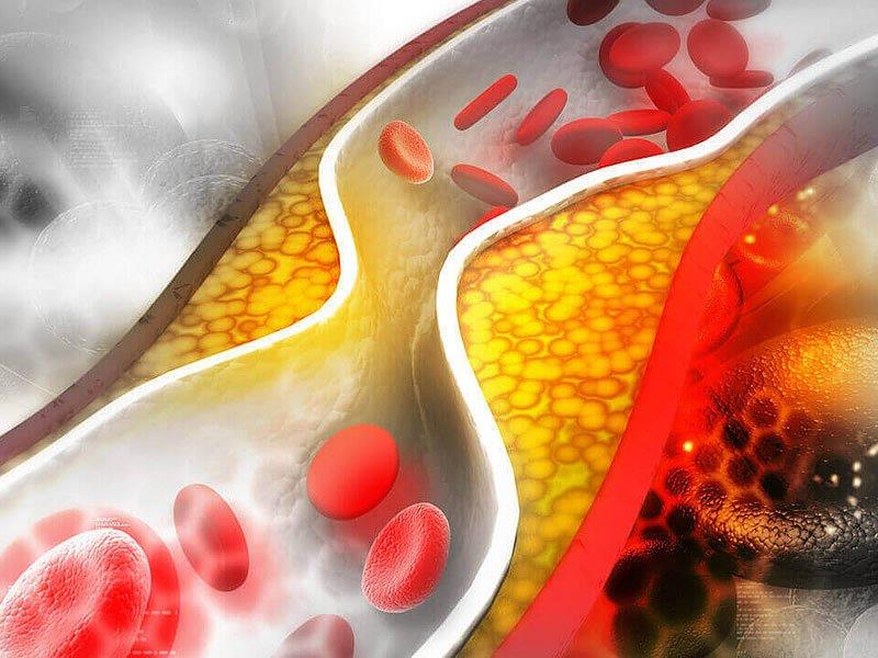 Kolesterol nasıl düşürülür? Kolesterol düşürmek için ne yapılmalı?
