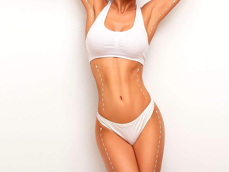 Liposuction (Bölgesel yağ alma) nedir? Fiyatı ne kadar?