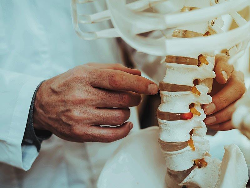 Osteoporoz nedir? Tedavisi nasıl yapılır? İlaçları ve Egzersizleri