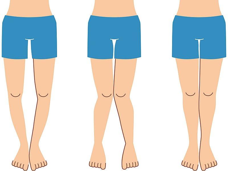 Parantez bacak nasıl anlaşılır? Tedavisi ve estetiği fiyatları nedir?