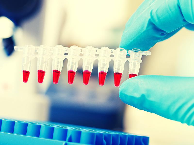 PCR Testi Nedir? Korona Virüs PCR Testi Nasıl Yapılır?