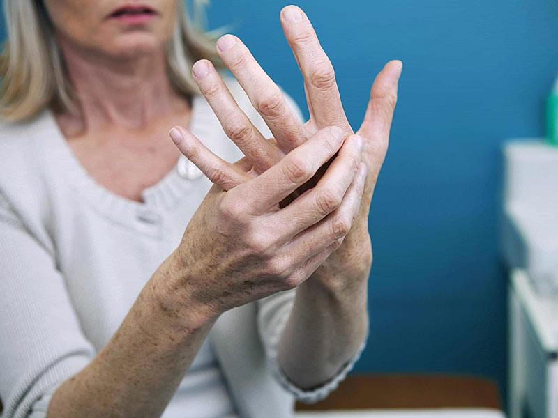 Romatoid Artrit Nedir? Belirtileri, Evreleri, Tedavisi ve Beslenme Önerileri