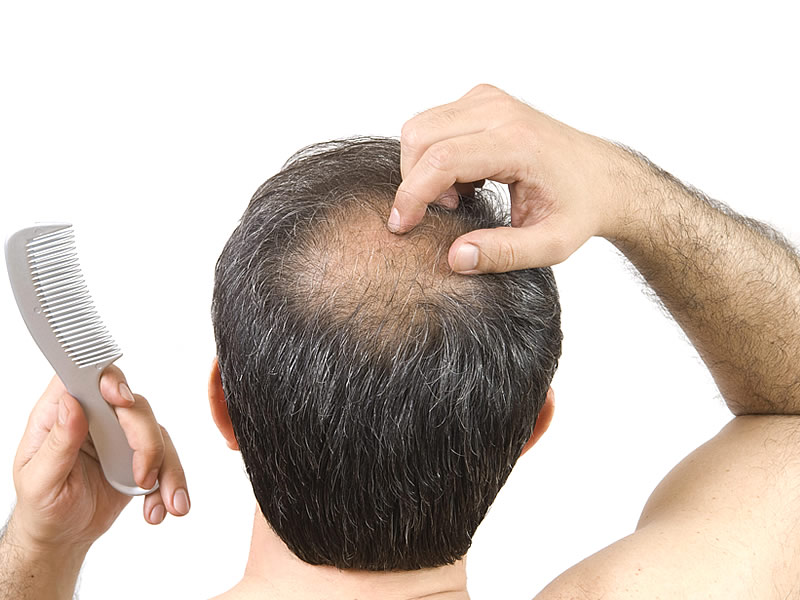Stresten Saç Nasıl Dökülür? Beyazlar mı?