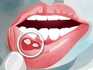 Ağız ülserine ne iyi gelir? Ağız ülseri bitkisel tedavi