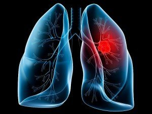 Akciğer kanseri nedir? Evreleri nelerdir? Belirtileri, nedenleri, tedavisi