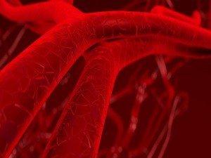 Atardamar tıkanıklığı nedir? Belirtileri, tedavisi ve ameliyatı