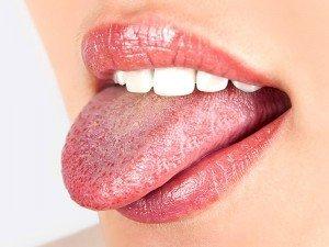Dil mantarı nasıl olur? Bulaşıcı mı? Koku yapar mı?