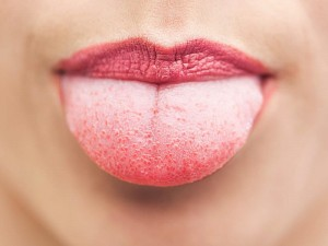 Dil yanmasına bitkisel çözüm