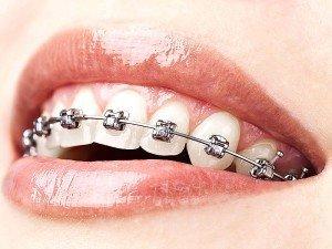 Diş teli ne kadar süre takılır? Fiyatları nedir?