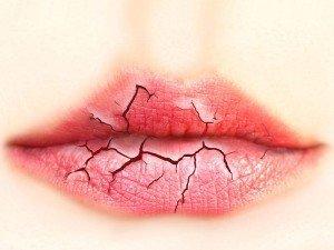 Dudak çatlaması neden olur? Nasıl geçer?