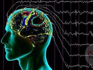Epilepsi hastalığı nedir? Neden olur? Sebepleri ve belirtileri nelerdir?
