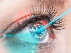 Göz çizdirme nedir? Fiyatı ne kadar? Ameliyatı nasıl olur?