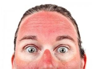 Güneş yanığı nasıl geçer? Ne iyi gelir?