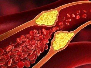 Kolesterol belirtileri nelerdir? Kolesterol nasıl anlaşılır?