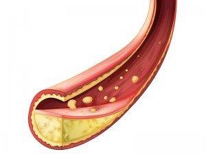 LDL kolesterol nedir? Kaç olmalı? Yüksekliği nasıl düşürülür?