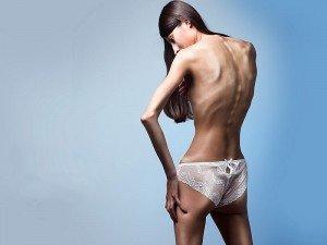Manken hastalığı nedir? Neden olur? Nasıl tedavi edilir?