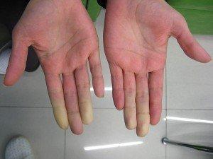 Raynaud hastalığı nedir? Neden olur? Belirtileri, sebepleri, tedavisi