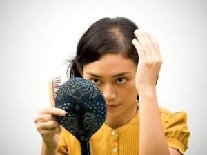 Saçkıran hastalığı nedir? Neden olur? Belirtileri, Tedavisi