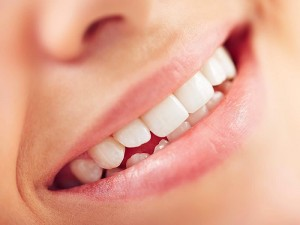 Sararmış dişleri beyazlatma yöntemleri