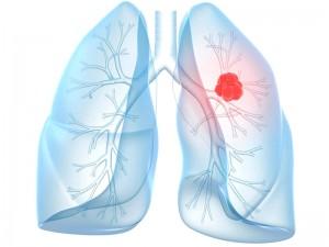 Sigara Bırakma Sonrası Akciğer Kanseri Riski