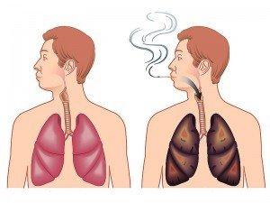 Sigarayı bıraktıktan sonra ciğerleri temizlemek için ne yapmalı?
