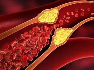 Yüksek Kolesterol İçin Diyet Listesi Nedir?