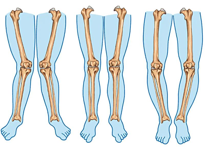X Bacak Deformitesi Nedir? Nasıl Olur? X Bacak Düzeltme Bandı ve Ameliyatı